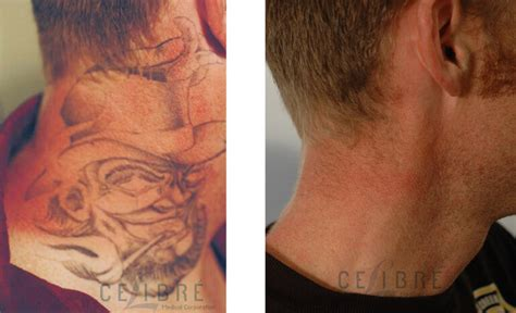 laser tattoo removal work