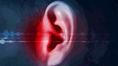 Hearing Sonic X3 Attack Cuban Zenith Damage