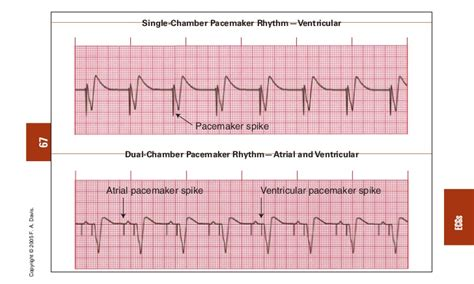 pacemaker chambre single chamber pacemaker atrial fibrillation ddresurs
