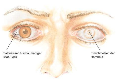darm beschwerden symptome