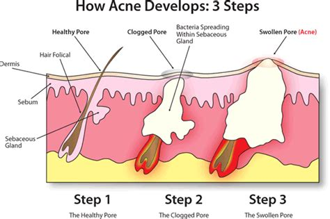 how does acne form understanding how acne forms and what makes the proactiv solution superior other acne