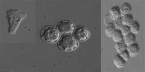terrifying diseases caused  parasites   eyes