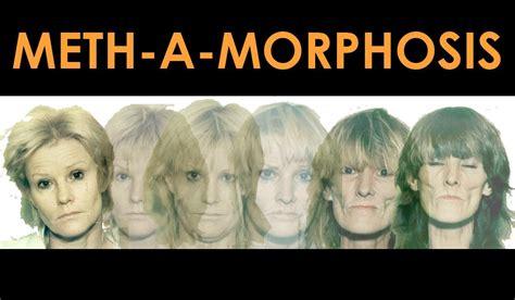 meth mouth  crank bugs meth  morphosis nida  teens