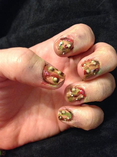 Finger infected from biting nails - how you can do it at home. Pictures designs Finger infected ...