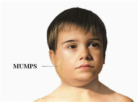 Mumps Symptoms Children