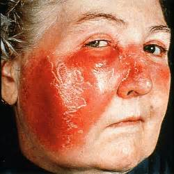 What Is Dermatology - Erysipelas - Medicalrealm Erysipelas