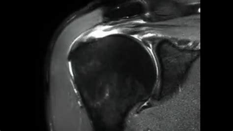 Full Thickness Rotator Cuff Tear -mri