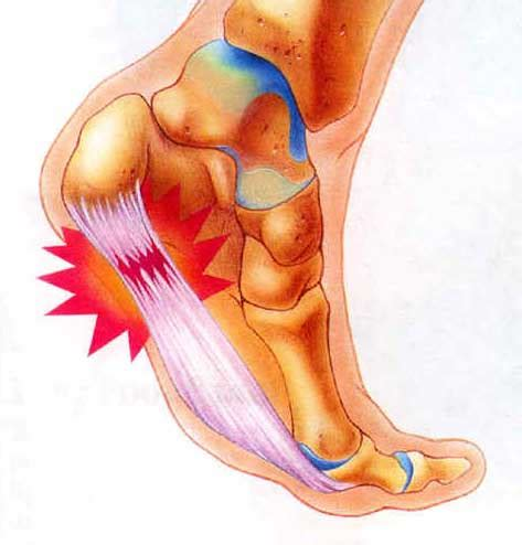planters fasciitis treatment plantar fasciitis inflammation of the fascia symptoms