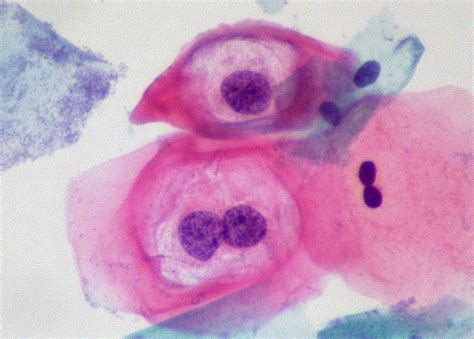 importance  pap smears  moment  science