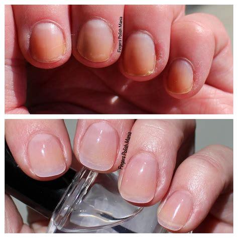 nail polish surgery sns after nails remove removal