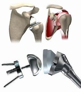 Лечение артроза плечевого сустава метод бубновского