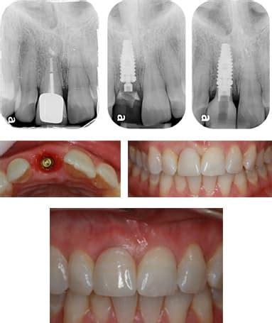 dental implants     gold coast oasis