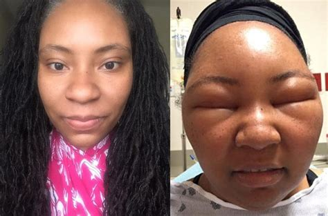 Health Vlogger Chemese Armstrongs Extreme Allergic
