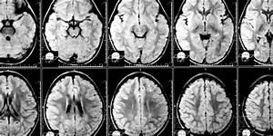 Traumatic Brain Injury Raises Premature Death Risk