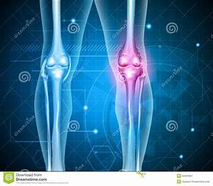 Knee Pain Abstract Background Stock Vector