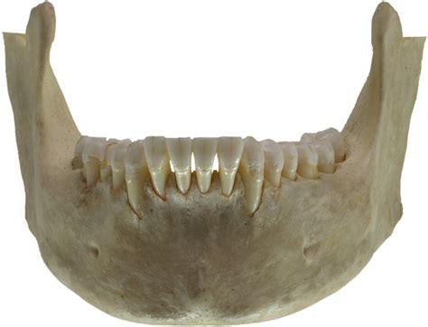 jaw human front bone jawbone wikidoc