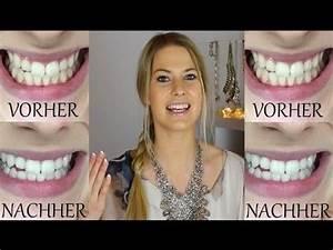 Weiße Zähne Hausmittel : wei e z hne in 5 minuten selber aufhellen youtube gesundheit gut zu wissen wei e z hne ~ Frokenaadalensverden.com Haus und Dekorationen