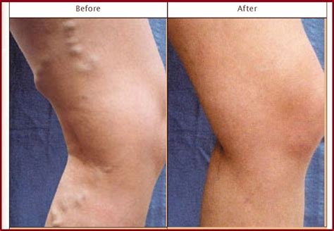 Best 25+ Varicose Vein Removal Ideas On Pinterest  Get. Best Video Editing Software For Windows Free. Loyola University Maryland Mba. Home Improvement Loans Ny Bravo Dish Network. Lawrence Plumbing Miami London Hotels Airport. Intermediate Term Bond Fund Dui In Seattle. Social Work Profession Carpet Cleaning Flyers. Internet Service Companies Key Bank Denver Co. Learn How To Invest In Stock