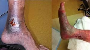 Managing Chronic Venous Leg Ulcers  U2014 What U2019s The Latest