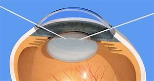 Human Eye  Cataract Surgery  Manual Cloudy Lens