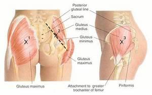 Effectiveness Of Tenotomy In Piriformis Pain Relief