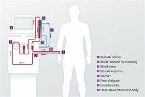 Diagram Of Hemodialysis