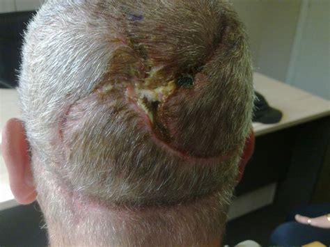 pinwheel flaps  scalp skin cancer part
