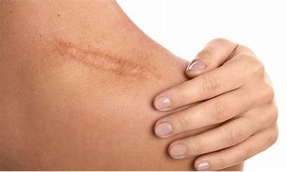 Scars Cicatriz Therapy Surgery Scar Tissue Acne