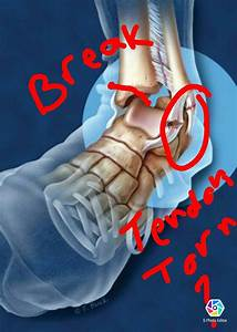 Pin By Staci Taylor Hill On Ankle Tendon Injury