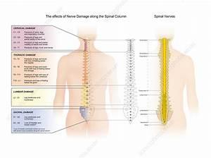 Spinal Nerve Damage  Illustration - Stock Image - C029  9558