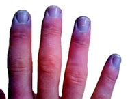 cyanosis simple the free encyclopedia