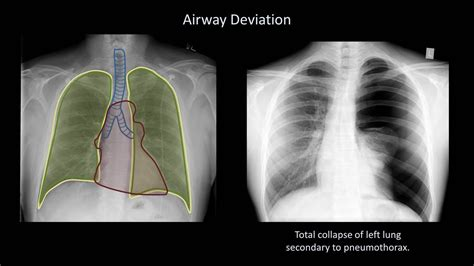 interpret  chest  ray lesson  airways bones