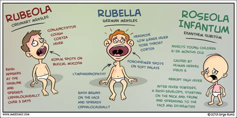 Measles vs Rubella