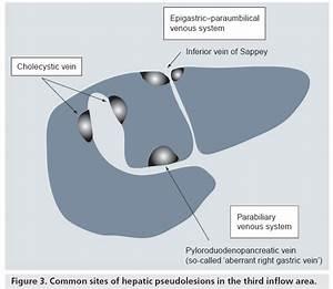 Radiologic Manifestation Of Hepatic Pseudolesions And