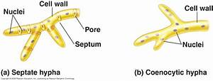 Diagrams Of Septate And Aseptate Fungi