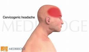 Cervicogenic Headache Explained In 3d Video