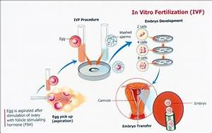 Which Is The Best Ivf Doctor In Bangalore