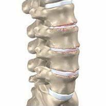 Поясничный остеохондроз лечение остеопатом