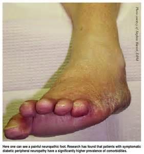 Diabetic Foot Neuropathy Symptoms