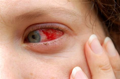 rosacea augen symptome