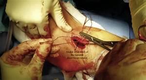 Anatomic Single