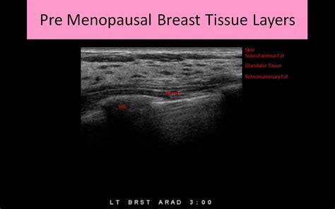 Muscle Anatomy Ultrasound Human Anatomy Body