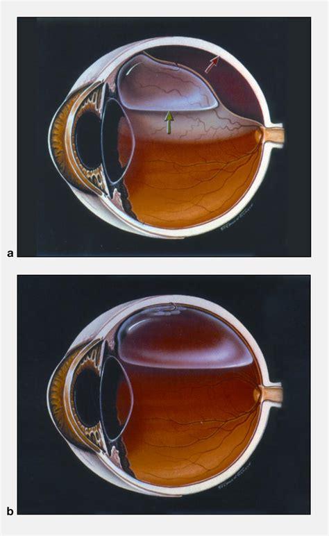 pneumatic retinopexy american academy  ophthalmology