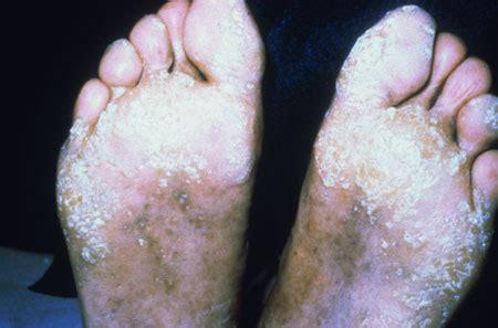 hivaids dermatological images hiv