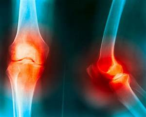Osteoarthritis  Knee Joint Degeneration Slowed With Weight