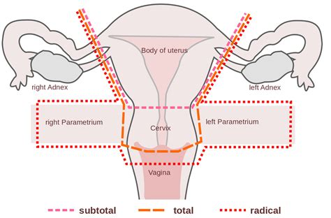 Hysterectomy - Procedure - Indications - Complications ...