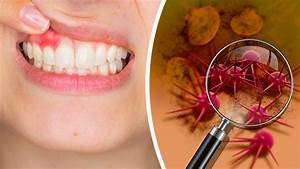 Here U2019s How To Know If You Have Inflammation In Your Mouth