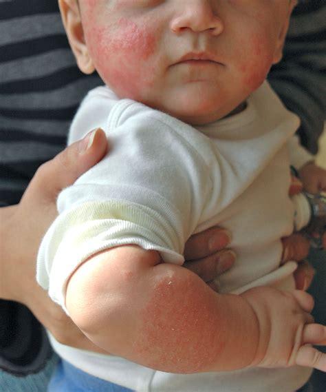 Allergy Cow Milk Causes Symptoms Treatment Allergy