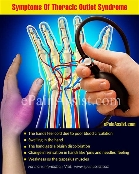 Massage Therapy For Thoracic Outlet Syndrome Symptoms. Vmware Cloud Management Software. Cosmetic Surgery Cincinnati Low Fat Quiche. Digital Business Consulting Bug Tracker Net. Masters In Public Policy Vardenafil Vs Cialis. Prolift Garage Door Opener Raymond Auto Body. Turks And Caicos Private Villas. Web Application Developer Allianz Stock Price. Software Testing Phases Glance Screen Sharing