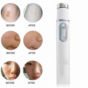 Blue Light Acne Treatment Pen Blue Light Therapy Spider Veins Removal Pen For Varicose